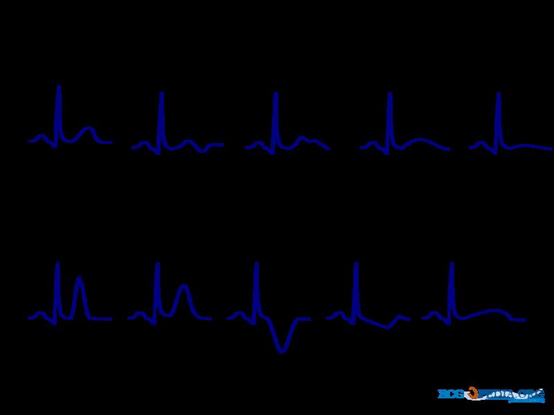 File De T Wave Morphology Cardionetworks Ecgpedia Png