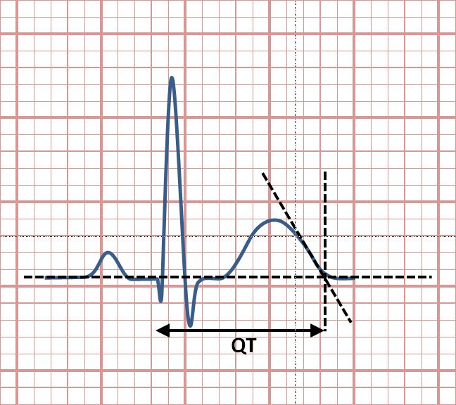 Image result for qt interval
