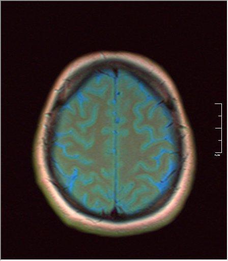 Brain MRI 03.jpg
