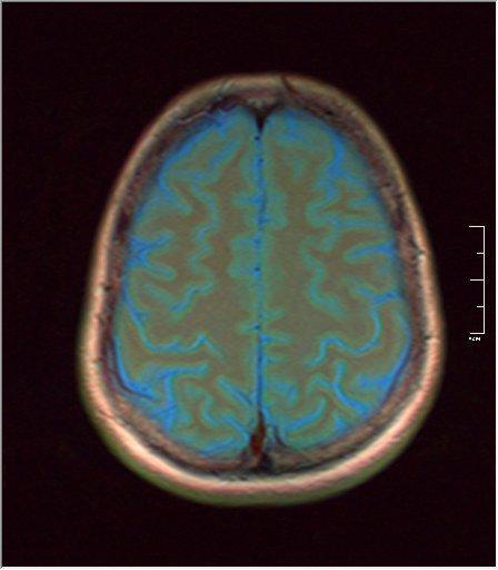 Brain MRI glioma 03.jpg