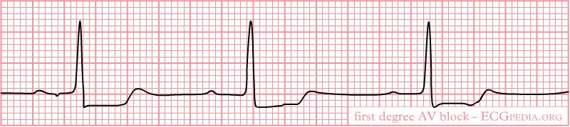De-Rhythm 1stAVblock (CardioNetworks ECGpedia)