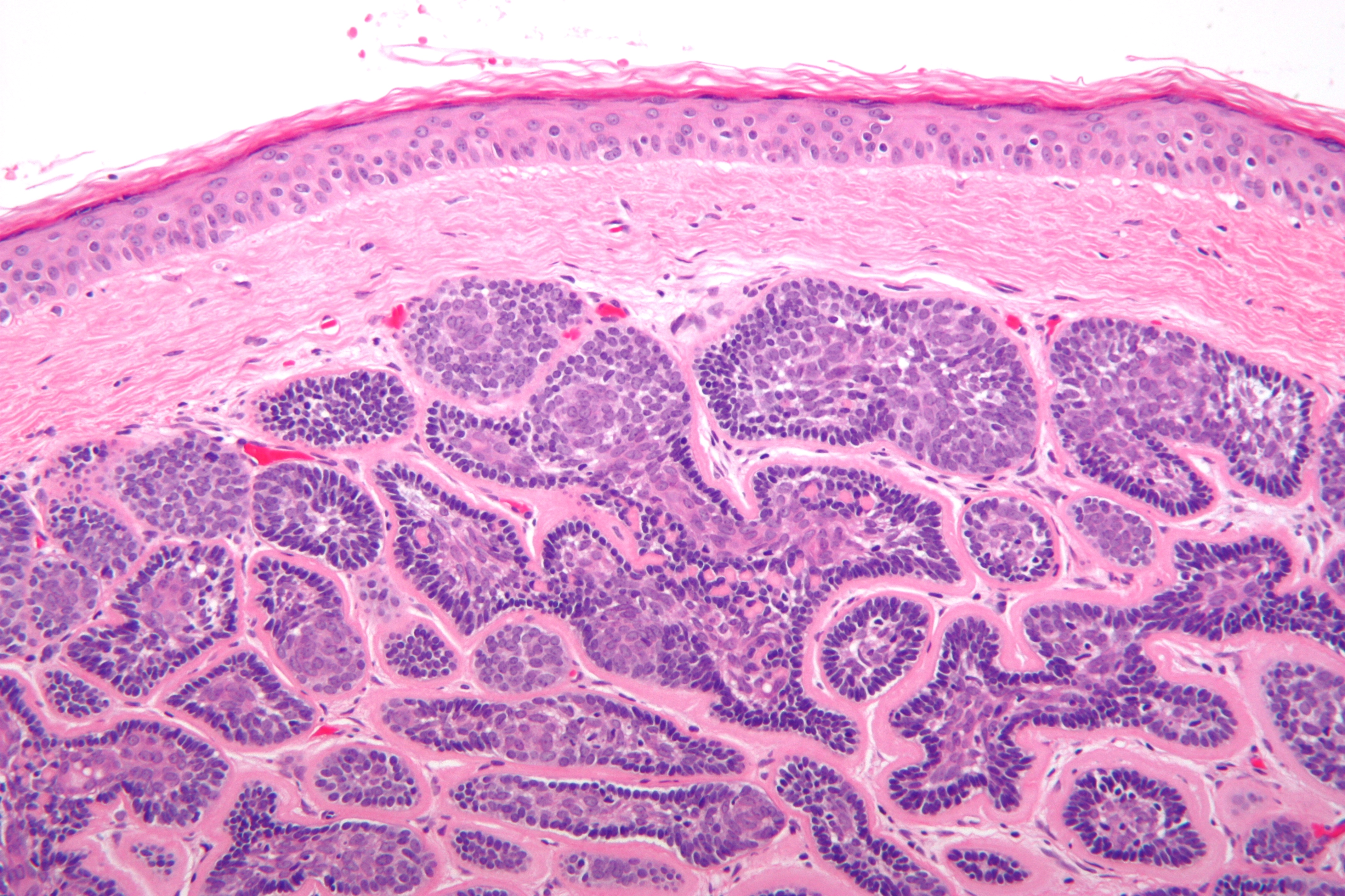 Large Sebaceous Cyst Dog