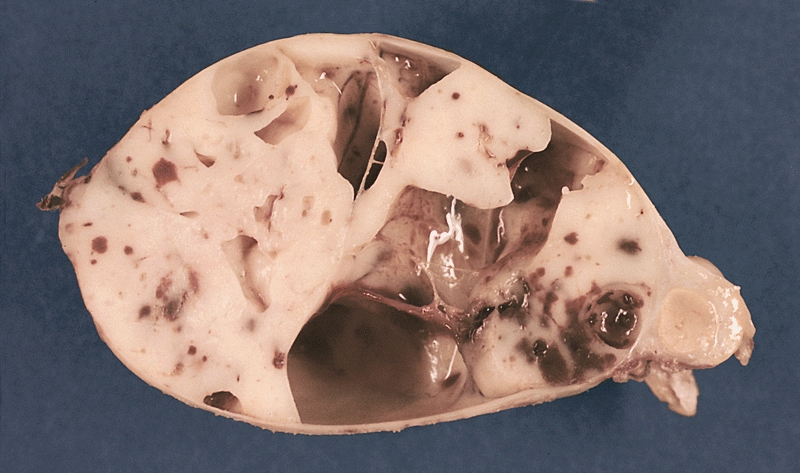 Datei:Encapsulated cystic thymoma.jpg