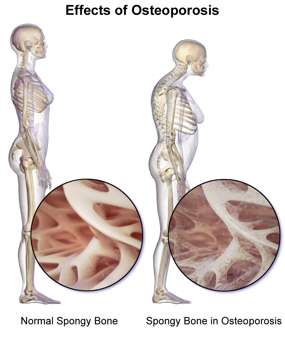Image result for osteoporosis