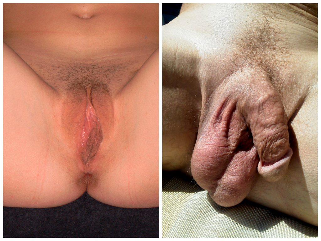 Circumcised Dick-3969