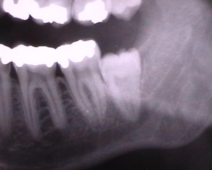 Wisdom tooth x-ray
