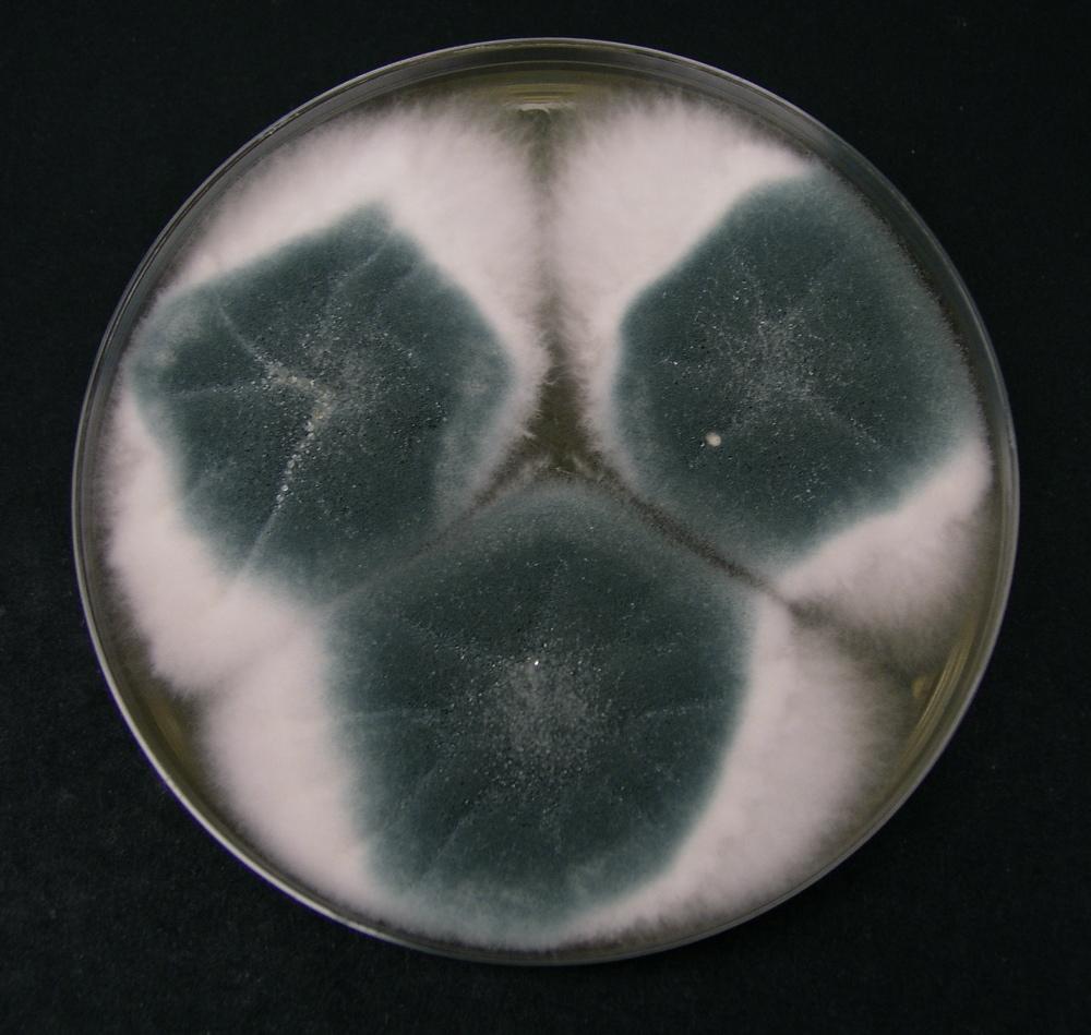 Aspergillus fumigatus – Wikipedia