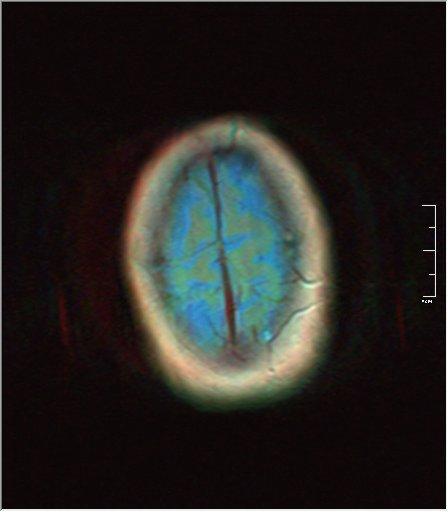 Brain MRI 0052 00.jpg