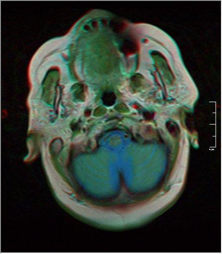 Brain MRI 0052 18.jpg