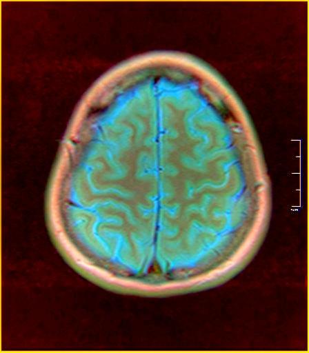 Color Brain MRI 0284 03.jpg