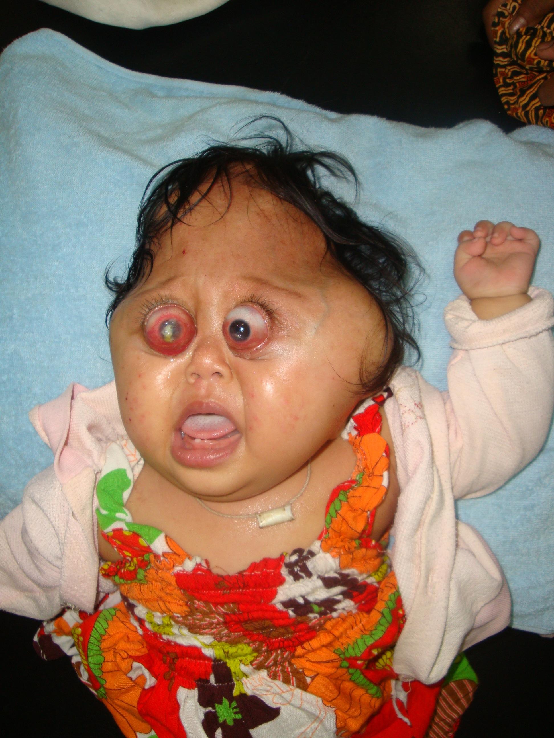 File:Crouzon Syndrome.jpg - Wikimedia Commons