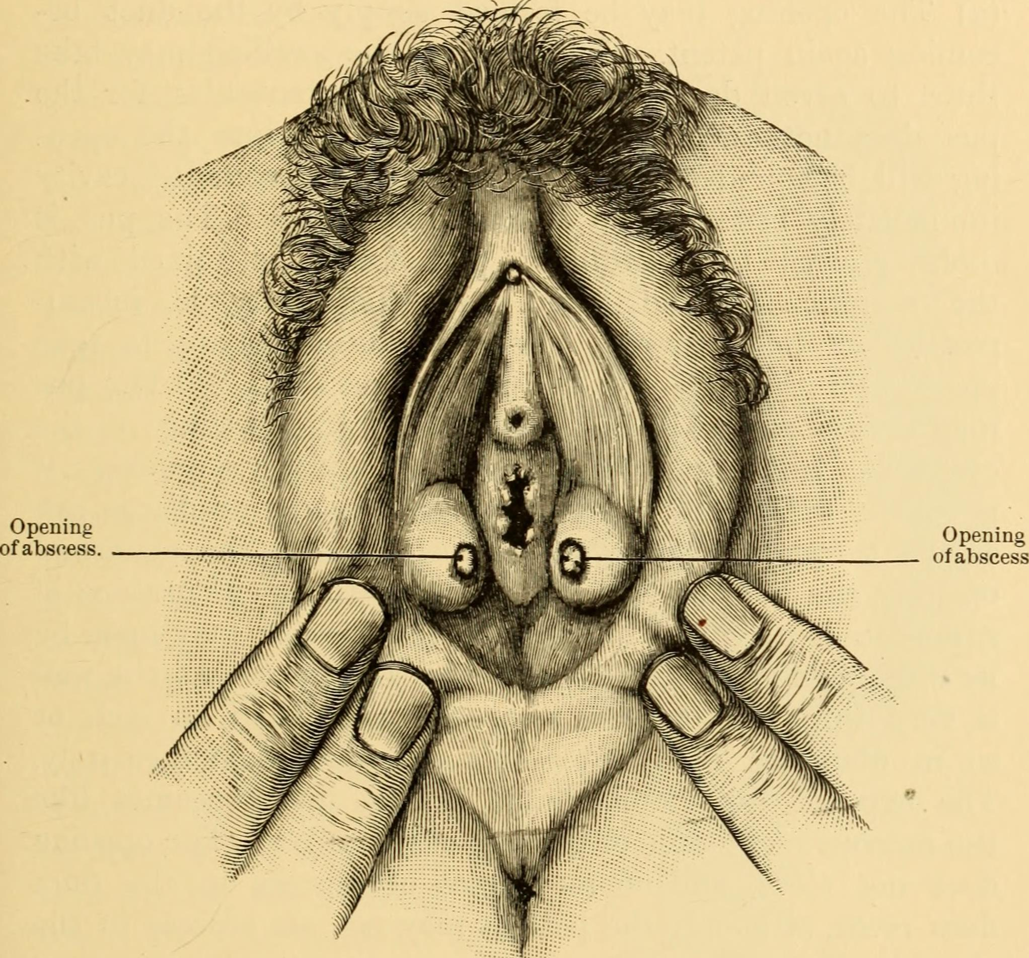 File:Diseases of women. A clinical guide to their diagnosis and treatment (1899) (14767986892).jpg