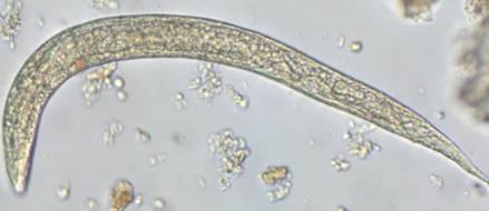 Parasite140080-fig3 Gastrointestinal parasites in seven primates of the Taï National Park - Helminths Figure 3n.jpg