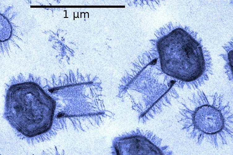 Tupanvirus – Wikipédia, a enciclopédia livre
