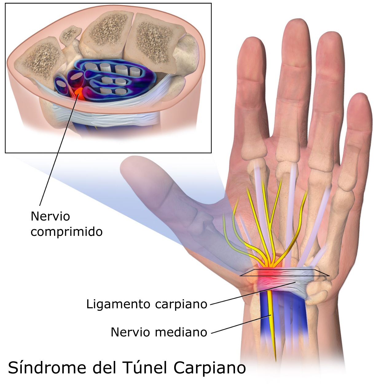 SYNDROME CARPAL TUNNEL PDF