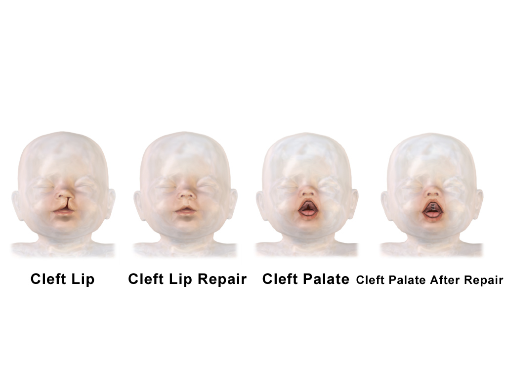 cleft lip and palate pdf