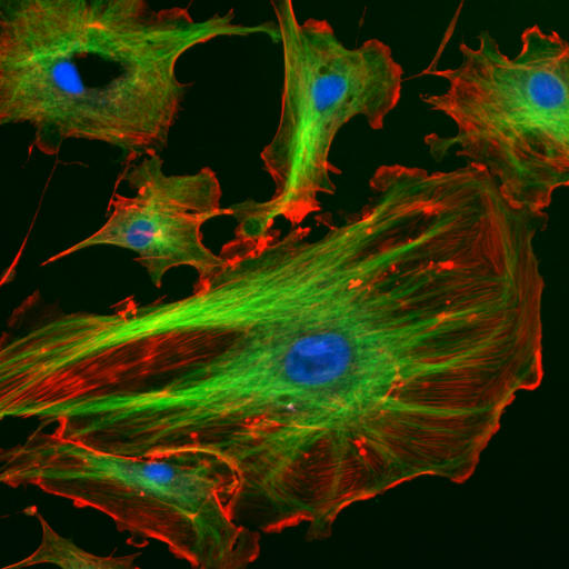 Endothelial cells under the microscope. Nuclei are stained blue with DAPI, microtubles are marked green by an antibody bound to FITC and actin filaments are labelled red with phalloidin bound to TRITC. Bovine pulmonary arthery endothelial cells