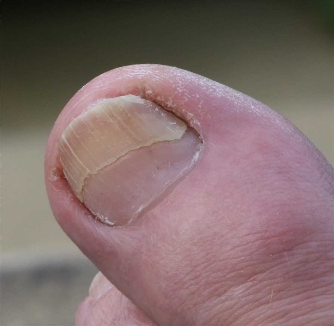 File:My Big Right Toe Nail, Damaged.JPG