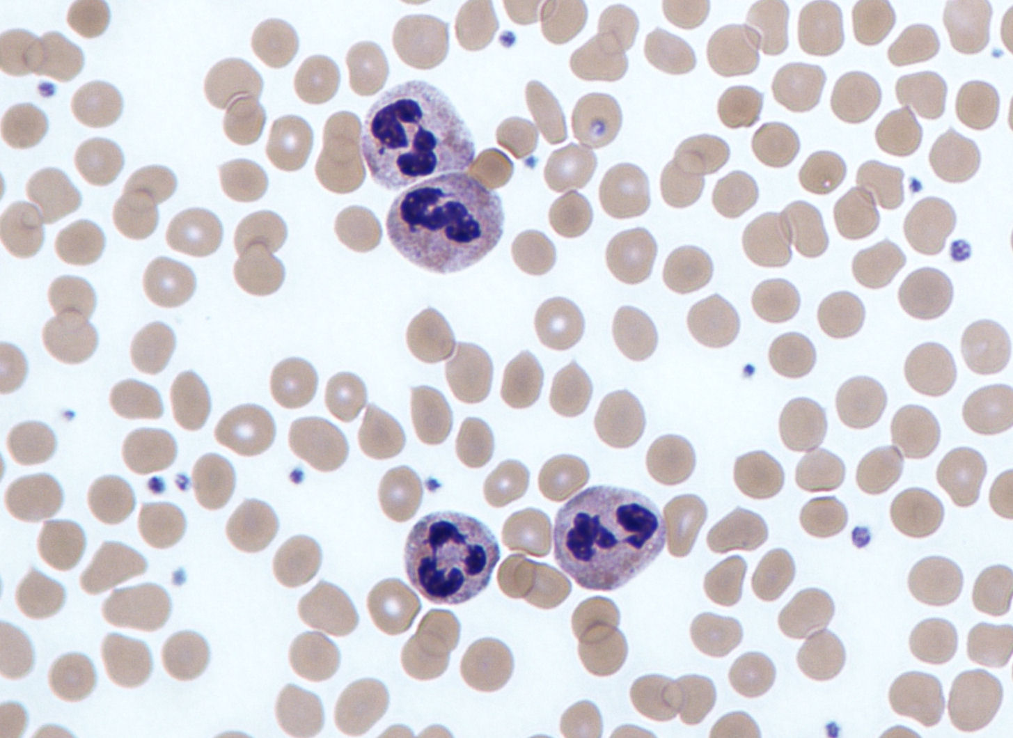 What do elevated neutrophils in the blood say