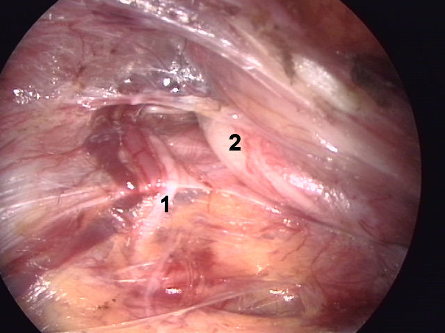 Abdominal Surgery: 2016
