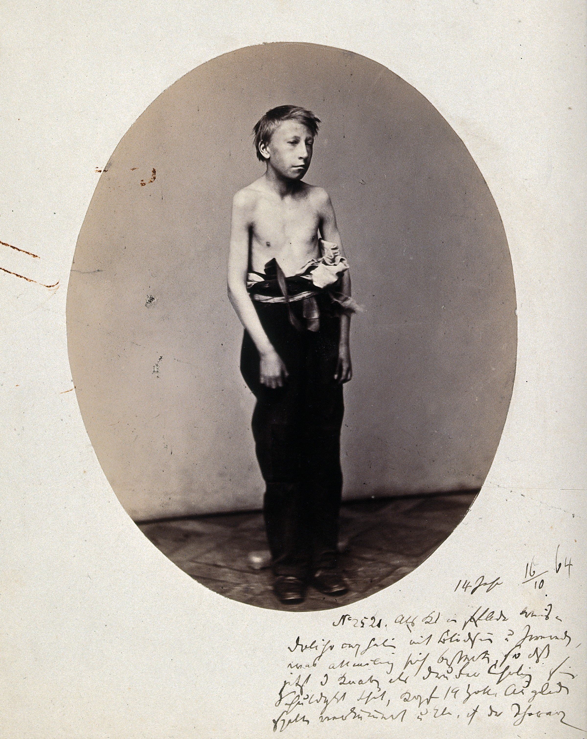 file:a young boy, standing, viewed in full length, naked to the w