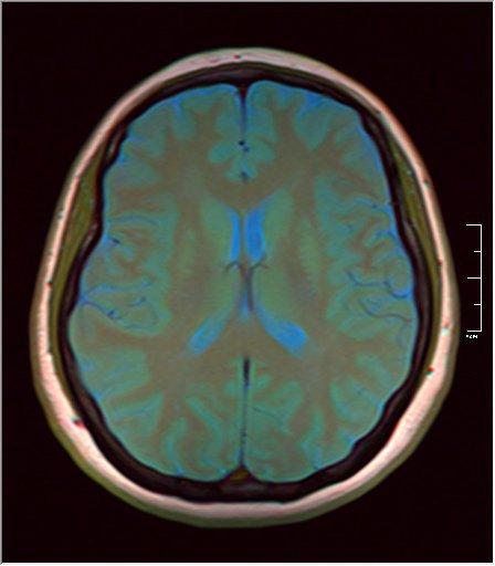 Brain MRI 0145 08.jpg