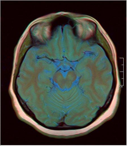 Brain MRI 0230 12.jpg