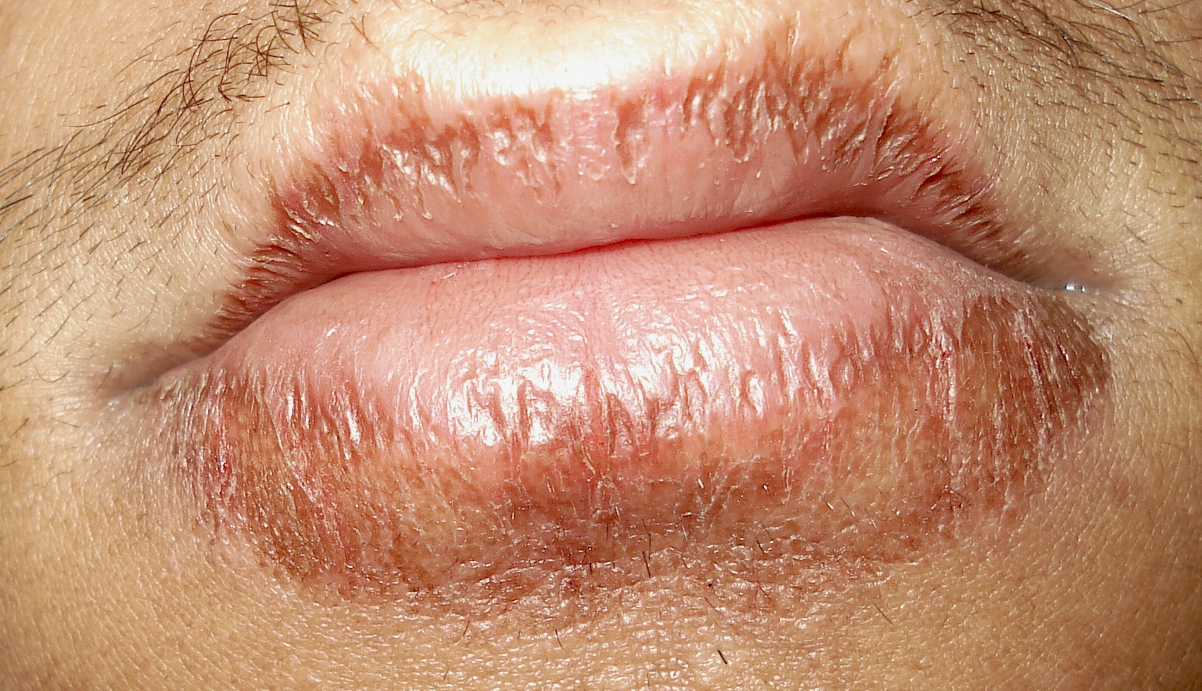 Home Remedies for Chapped lips | Top 10 Home Remedies
