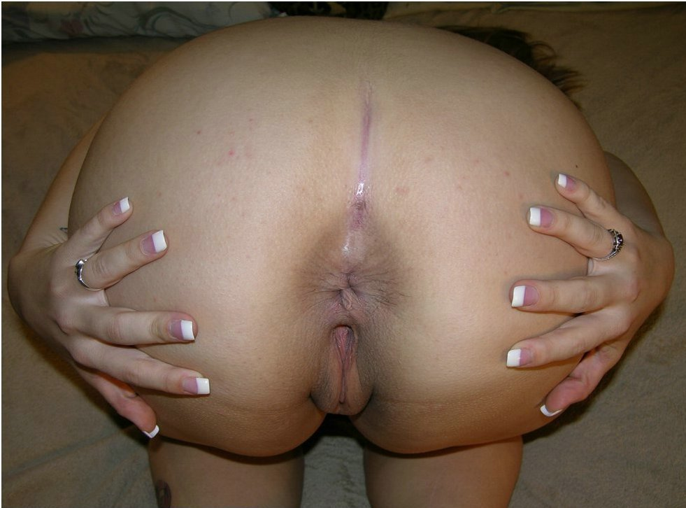 Anal bleaching before and after pictures