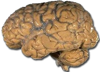 http://upload.wikimedia.org/wikipedia/commons/0/0a/Human_brain_NIH.png