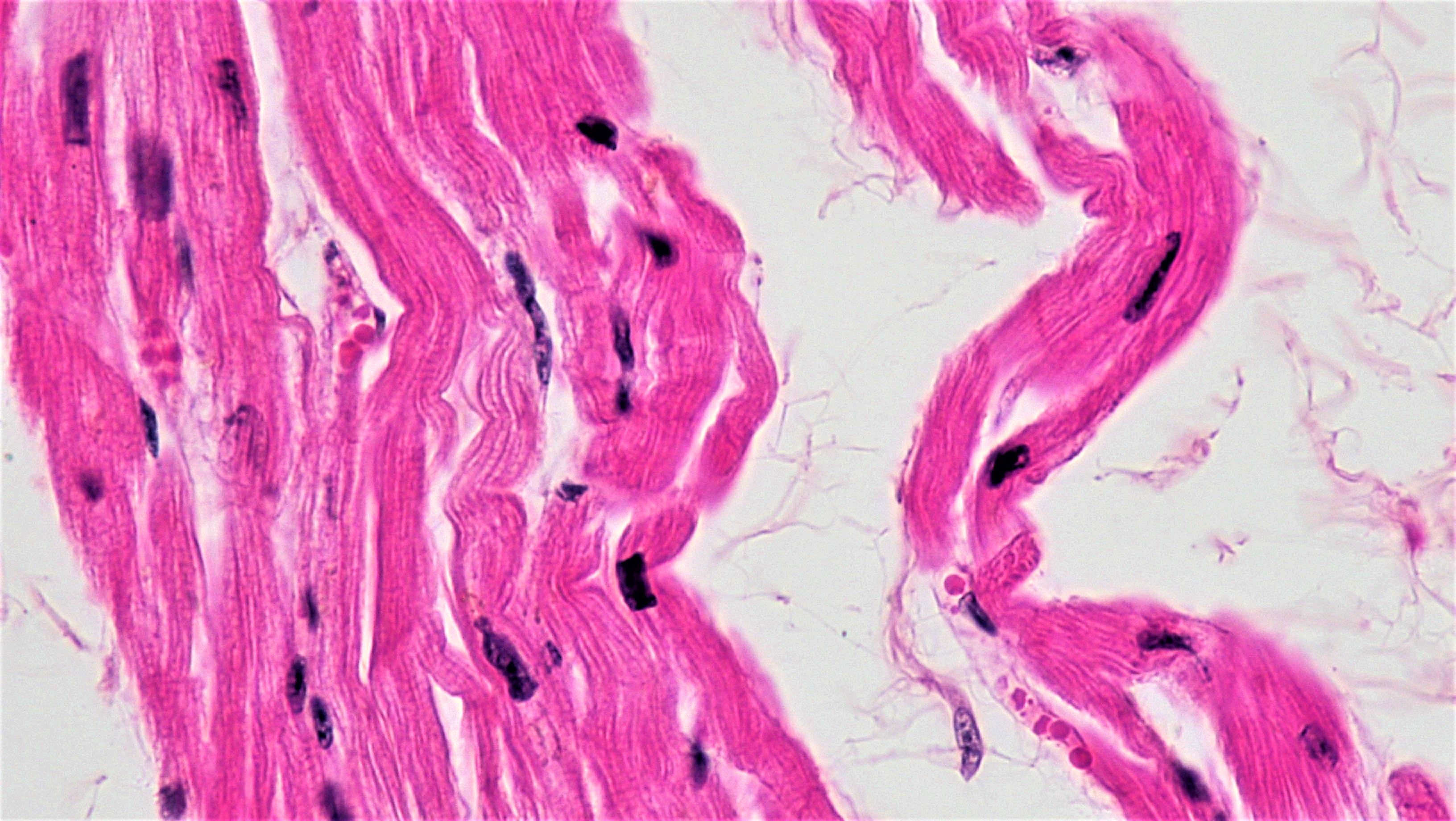 Filemuscle Tissue Cardiac Muscle 42013029032g Wikimedia Commons