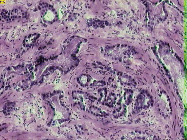 Prostate cancer - one of many diseases linked to EDCs. Picture by National Institutes of Health.