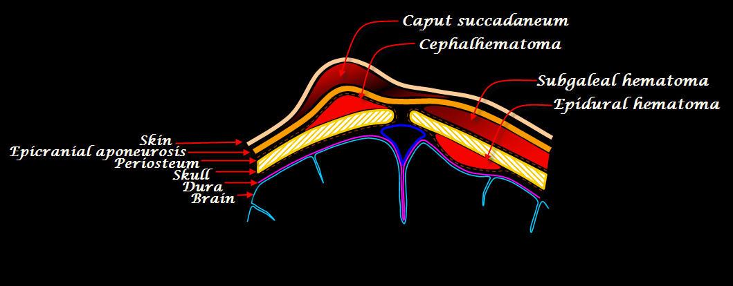 trauma hemorrhage adult subgaleal head