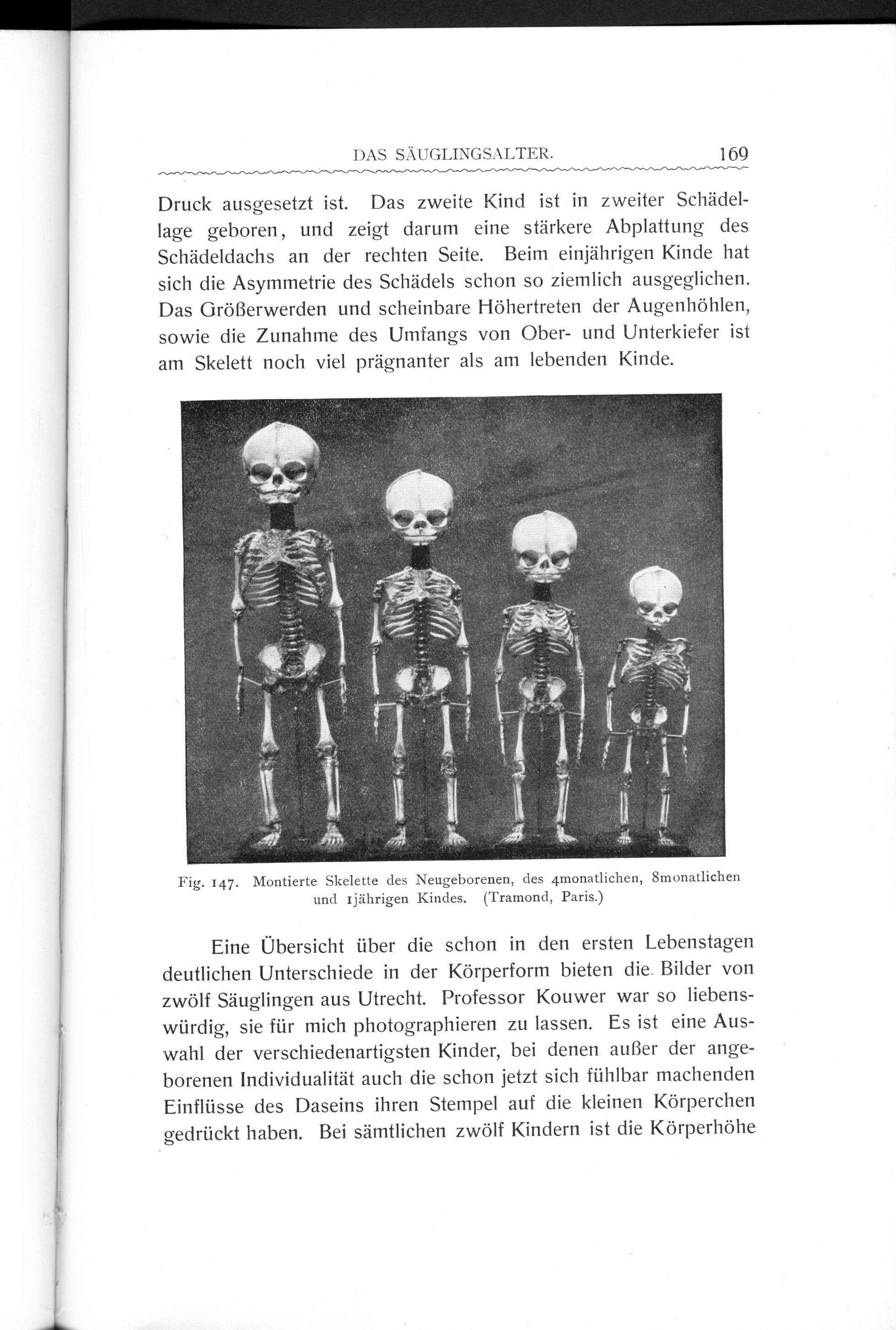 File:Stratz Körper des Kindes 3 169.jpg - Wikimedia Commons