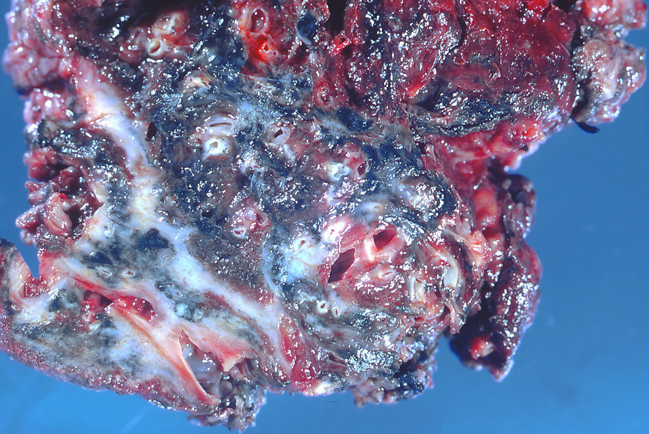 Asbestosis Lung