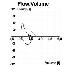 Spirometria di un soggetto asmatico.