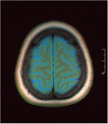 Brain MRI 0145 02.jpg