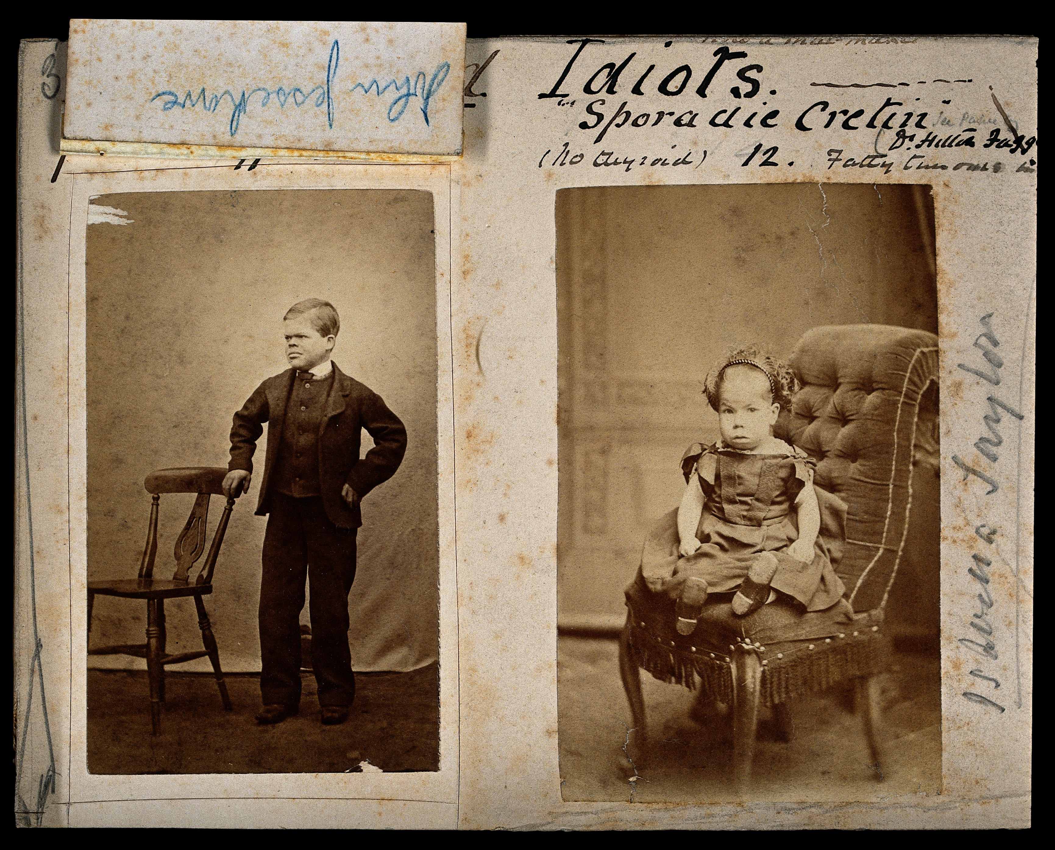 file down s syndrome in a girl and a boy two photographs wellcome