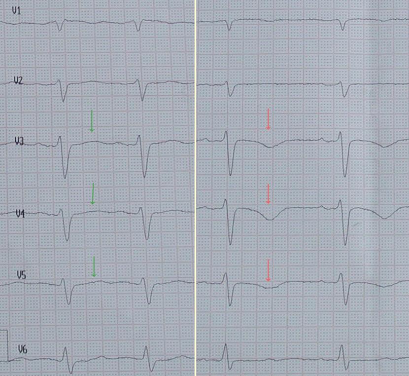 EKG (Ableitungen V1 V6) Mit Normalen T Wellen (grüne Pfeile) Etwa Eine  Stunde Nach Schmerzbeginn Und Negativen T Wellen (rote Pfeile) Etwa Vier  Stunden ...
