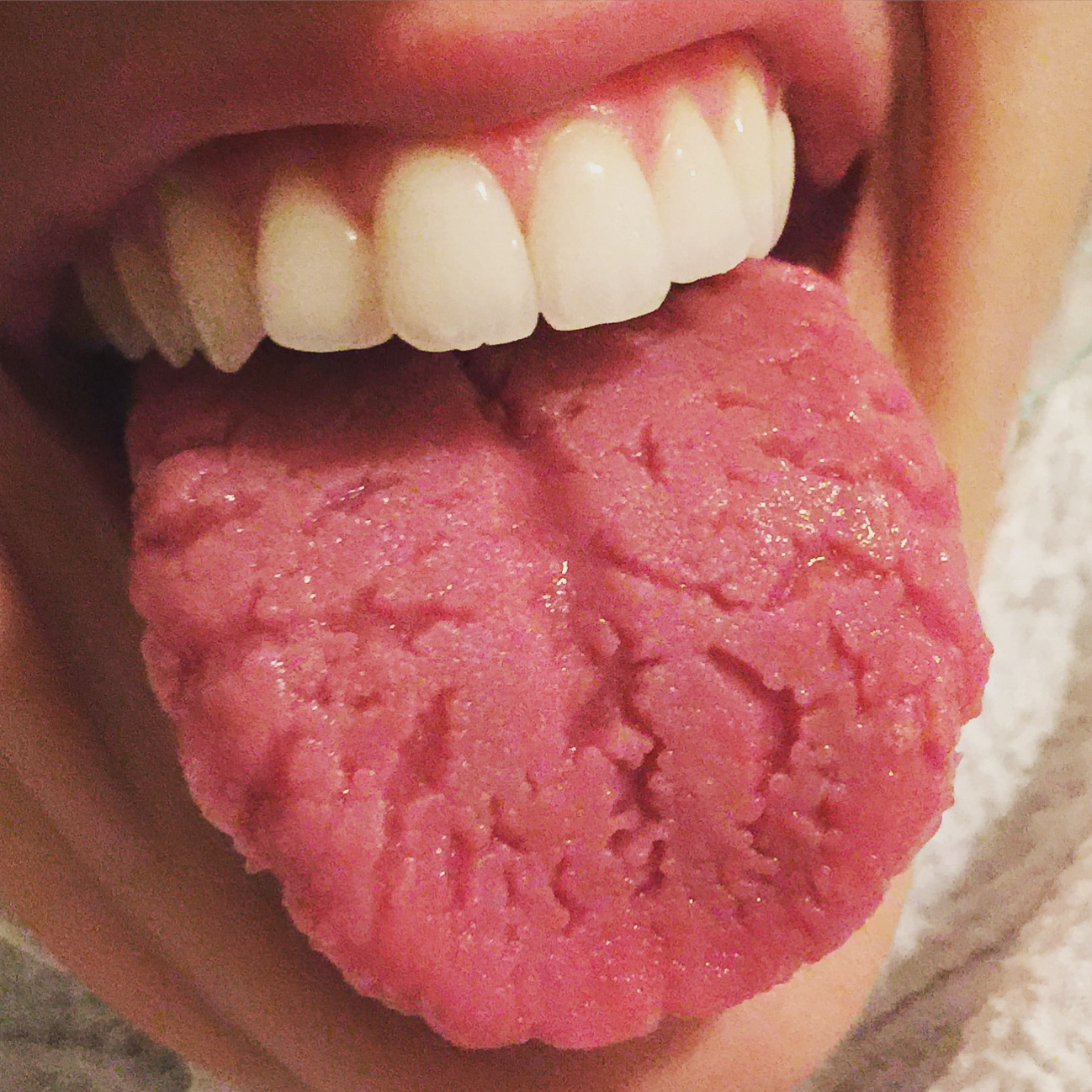Fissured Tongue: Causes, Symptoms and Treatments