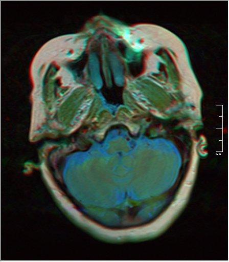 Brain MRI 0052 16.jpg