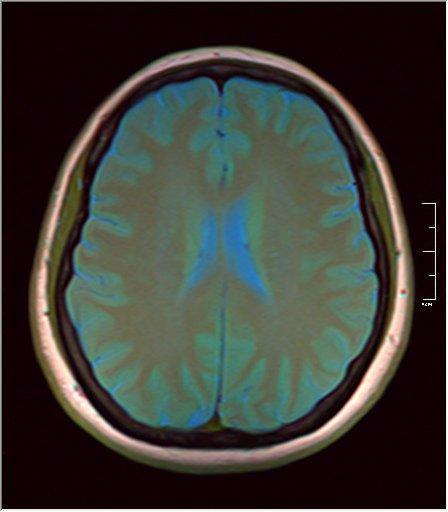 Brain MRI 0145 07.jpg