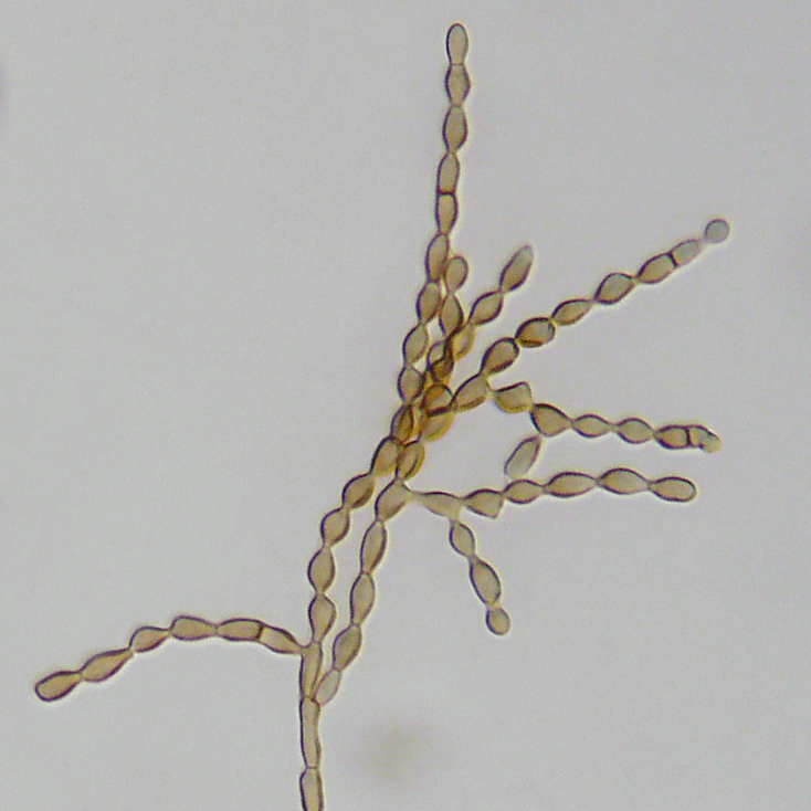 Cladosporium_cladosporioides on Classification Is Very Important To