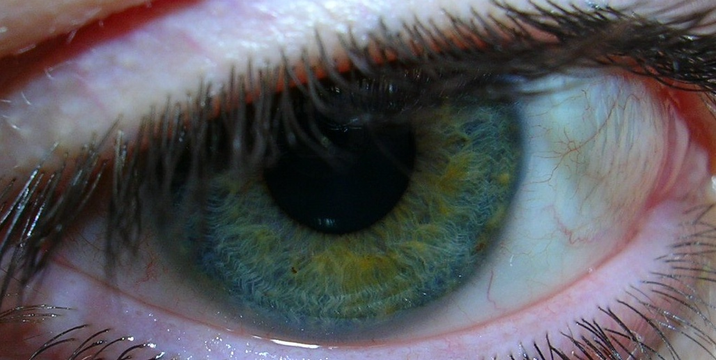 File:Eye Heterochromia Blue Green.jpg