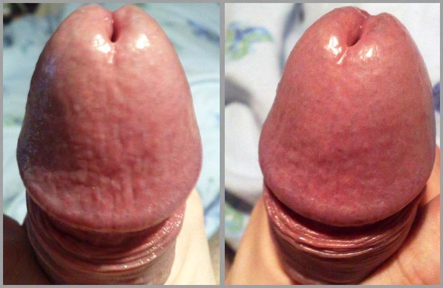 Penis glans pain