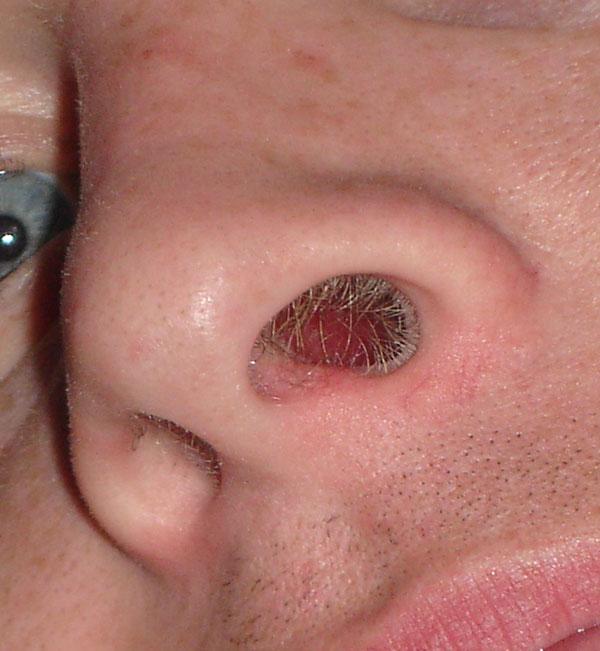 fosas nasales lastimadas