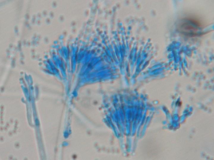 File:Penicillium sp. (ascomycetous fungi).jpg - Wikimedia Commons
