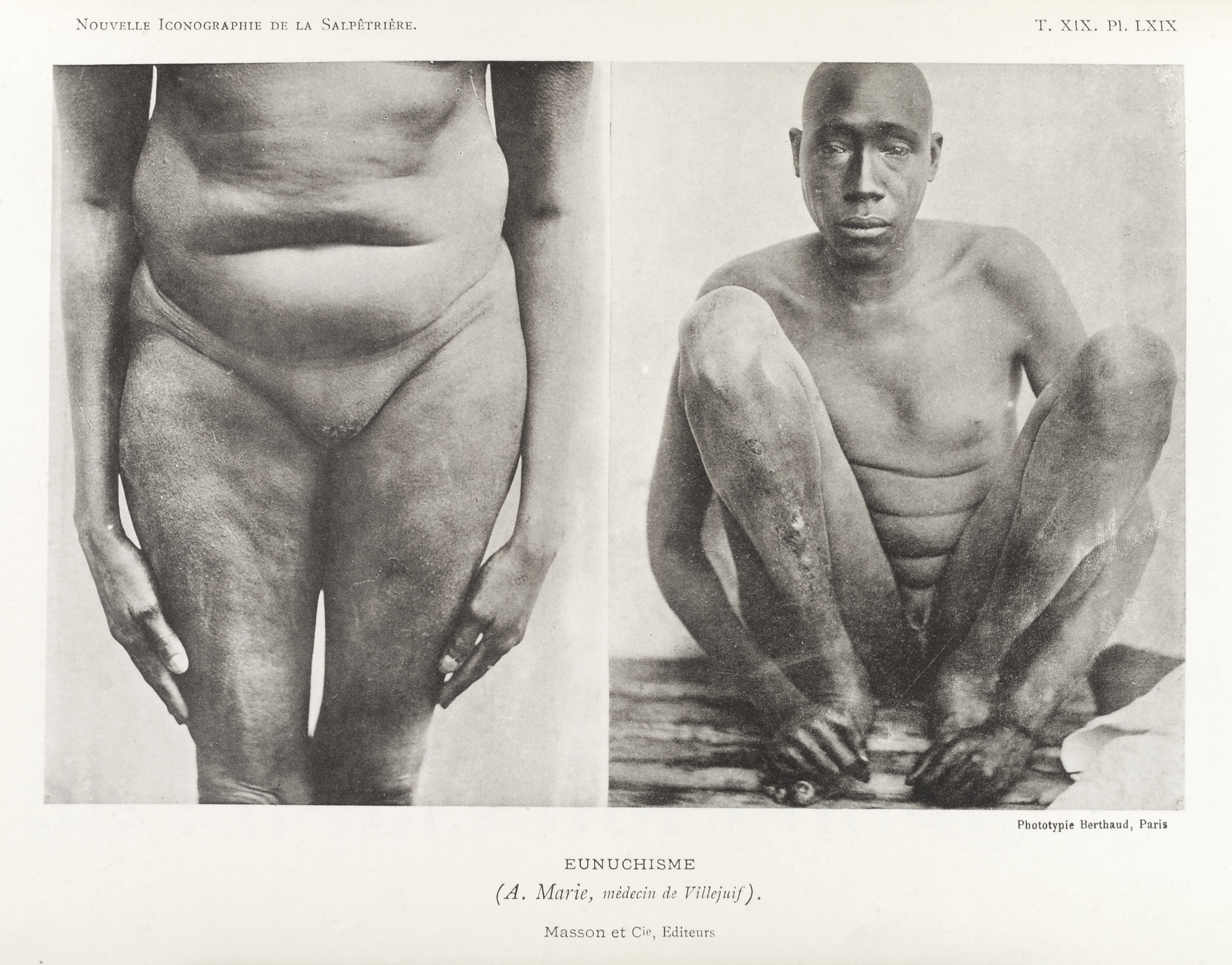 File:Photos of man suffering from condition called \'Eunuchism ...