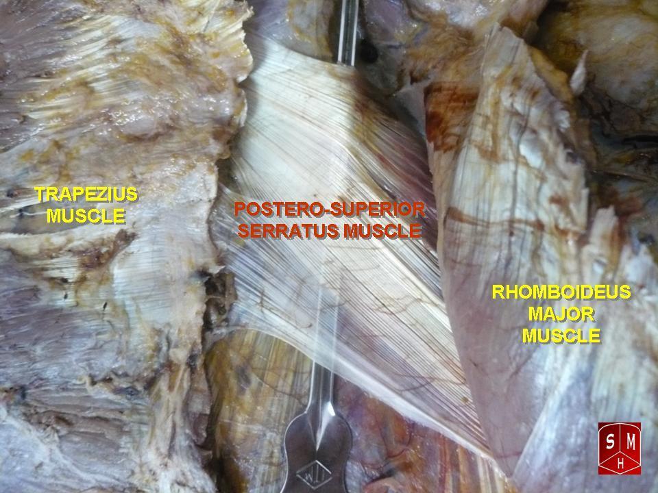 Serratus Posterior Superior Cadaver Serratus posterior sup...