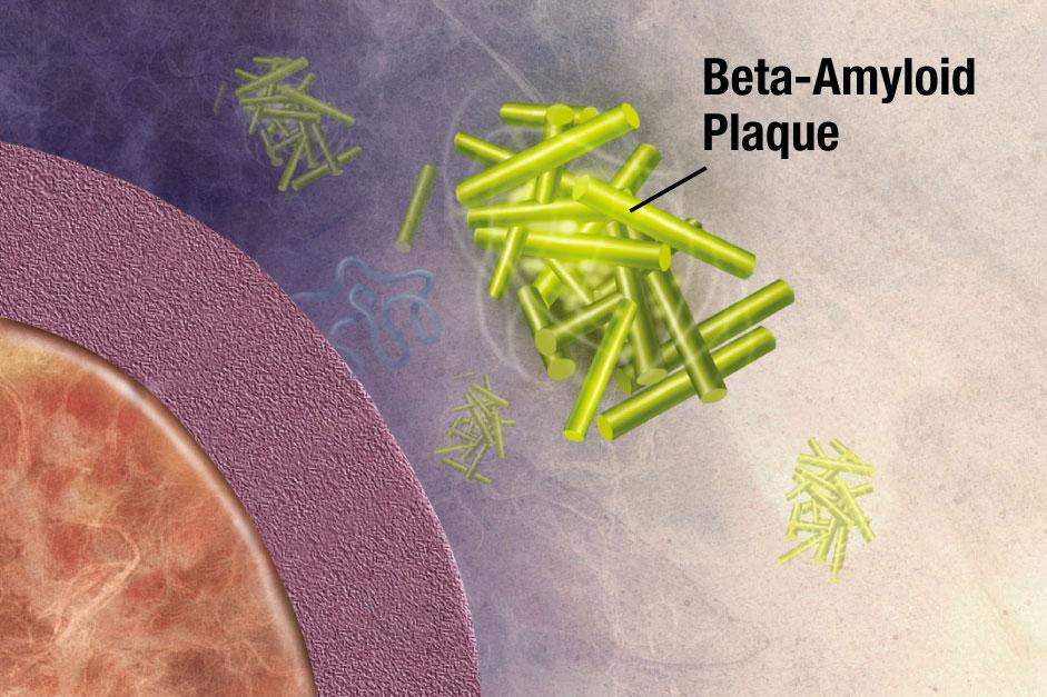 Výsledek obrázku pro amyloid beta